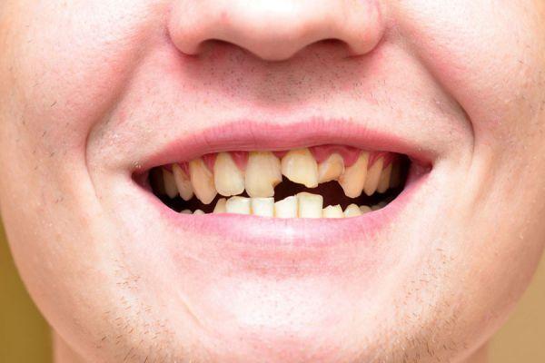 El significado de soñar con dientes caidos o que se rompen. Interpretación de los sueños: dientes que se rompen o se caen