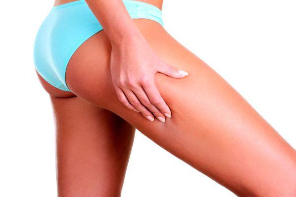 Tratamiento casero para combatir la celulitis. Tips para eliminar la celulitis. 4 claves para tratar la celulitis. Tratamiento contra la celulitis