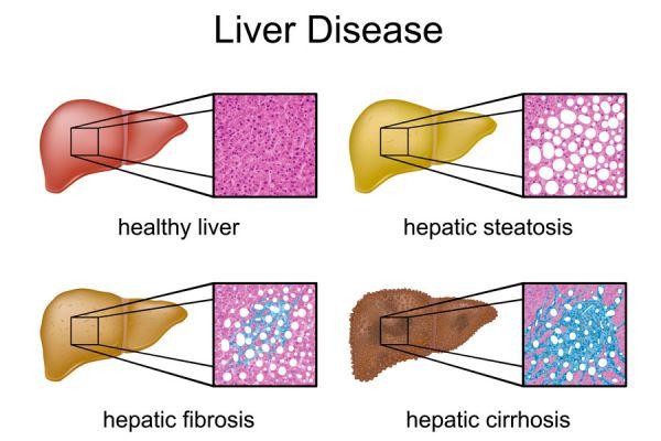 Señales para detectar el hígado graso. Factores que desarrollan el hígado graso.