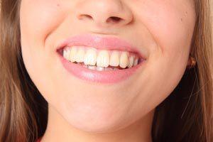 Ilustración de Cómo tener dientes más blancos