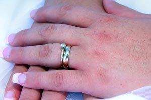 Ilustración de Cómo quitar los anillos de las manos hinchadas