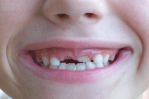 Ilustración de Cómo actuar al golpearse un diente