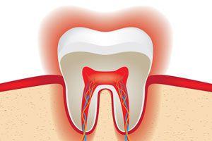 Ilustración de Cómo evitar el desgaste del esmalte de los dientes