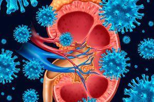 Ilustración de Remedios caseros para Infecciones Urinarias