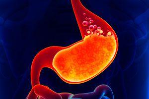 Ilustración de Cómo reconocer el reflujo gastroesofágico