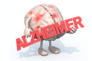 Ilustración de Cómo Prevenir el Alzheimer