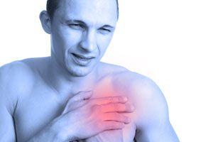 Ilustración de Síntomas y Causas de la Arteriosclerosis