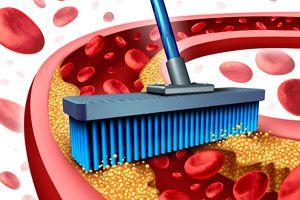 Ilustración de Remedios caseros para la arteriosclerosis
