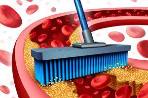 Ilustración de Cómo aliviar la arteriosclerosis haciendo dieta