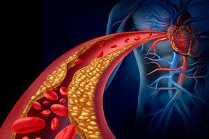 Ilustración de Cómo Prevenir Enfermedades Vasculares
