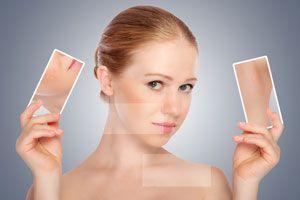 Ilustración de Cómo eliminar los Granitos de la Cara