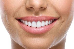 Ilustración de Cómo blanquear los dientes con recetas naturales