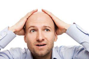 Ilustración de Causas de la caída del cabello