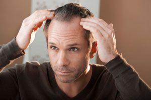 Ilustración de Tratamientos contra la alopecia