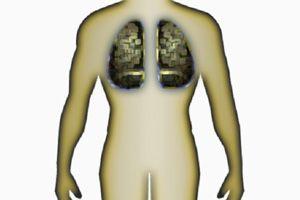Ilustración de El cáncer de pulmón