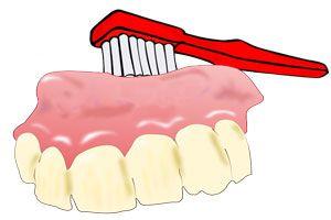 Ilustración de Cómo limpiar la dentadura postiza