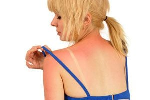 Ilustración de 4 Remedios Caseros para las Quemaduras de Sol