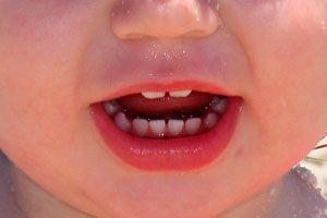 Ilustración de Aparición, caída y desarrollo de los dientes de leche