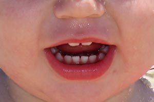 Ilustración de Disfemia infantil: cuando hablar llega con problemas