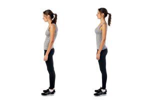 Ilustración de Cómo Corregir la Postura Corporal