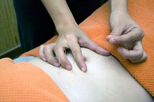 Ilustración de Beneficios de la acupuntura para el tratamiento de la ansiedad